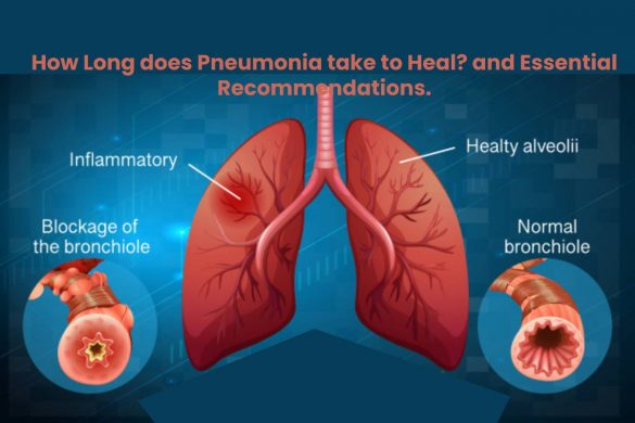 How Long does Pneumonia take to Heal_ and Essential Recommendations (2)