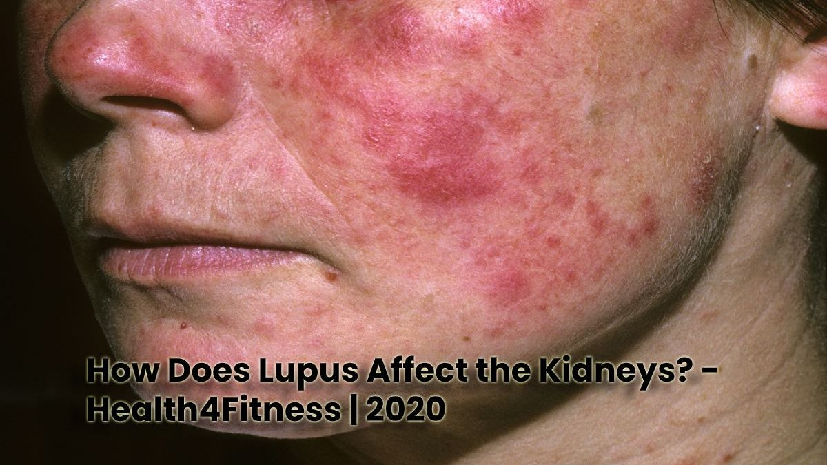 How Does Lupus Affect the Kidneys?