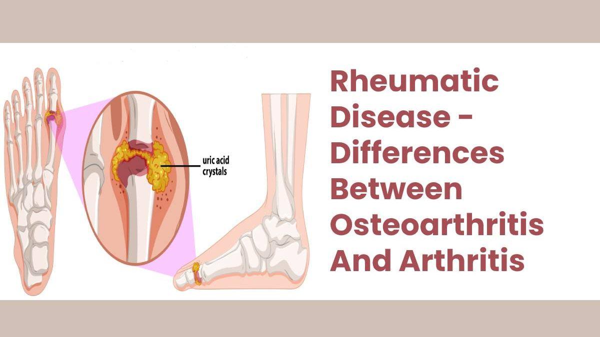 Rheumatic Disease – Differences Between Osteoarthritis And Arthritis