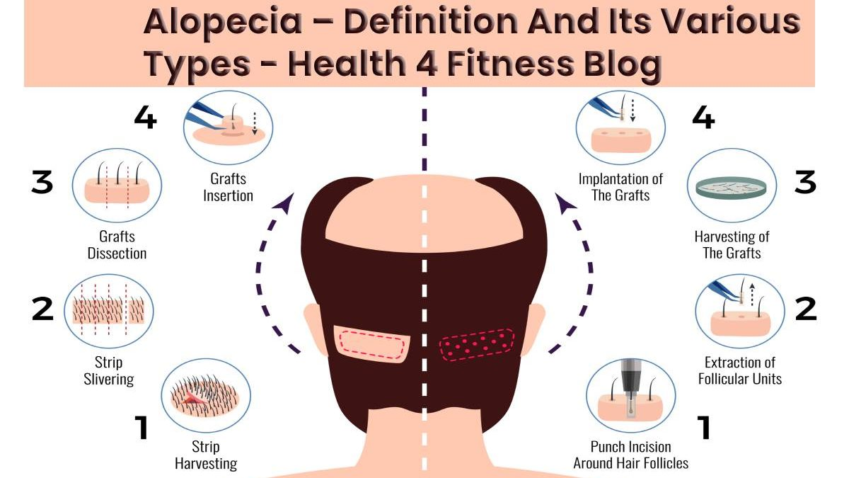 Alopecia – Definition And Its Various Types