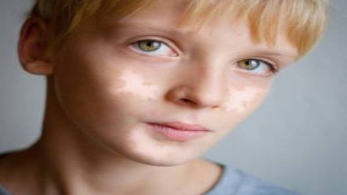 Vitiligo In Children: Tips To Consider
