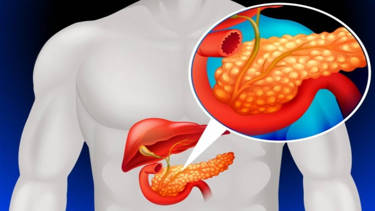 Pancrease: Functions, Location & Disorders and More