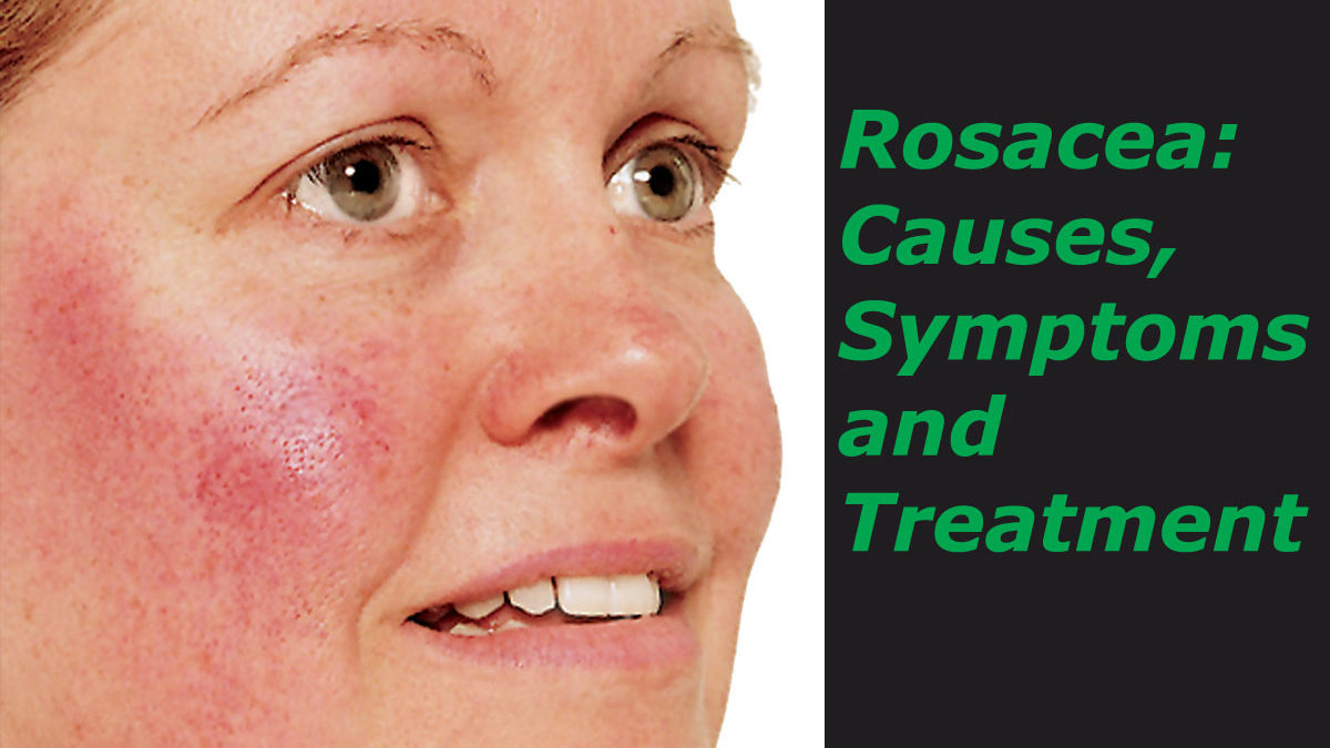Rosacea: Causes, Symptoms and Treatments