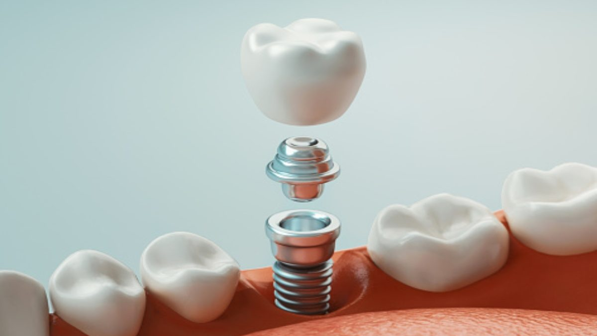 10 Impressive Benefits of Dental Implants