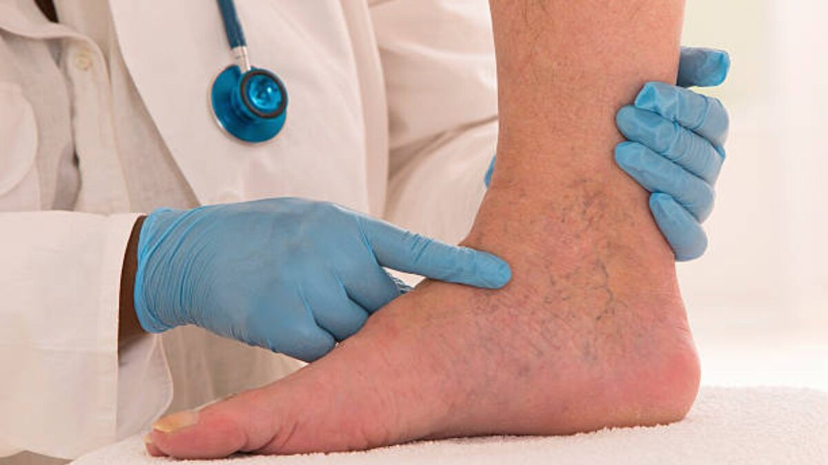 Your Complete Guide To Sclerotherapy Treatment For Spider Veins