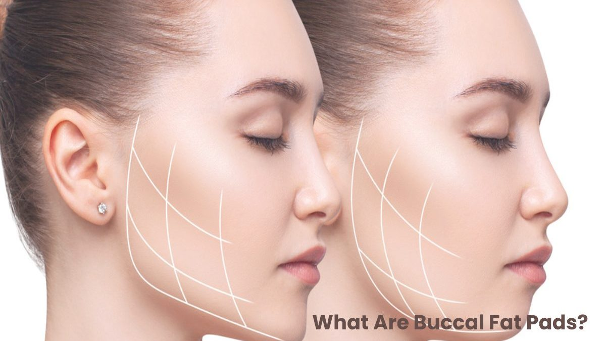 What Are Buccal Fat Pads?