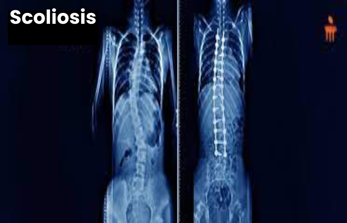 Scoliosis Write For Us