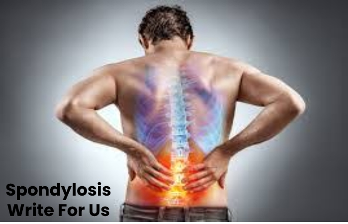 Spondylosis Write For Us