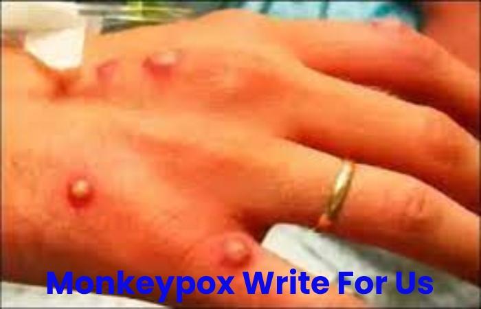 Monkeypox Write For Us