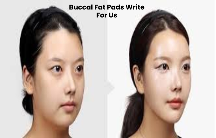 Buccal Fat Pads Write For Us
