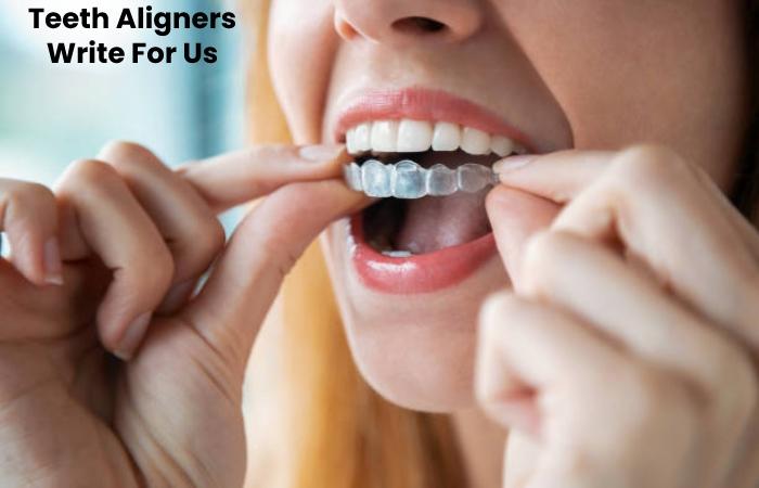 Teeth Aligners Write For Us